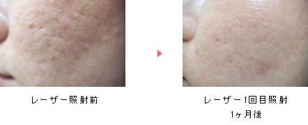 ニキビ びとう皮膚科